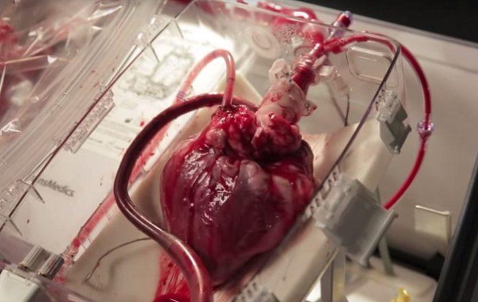 Transplantácia srdca. Zdroj: topmagazin.sk